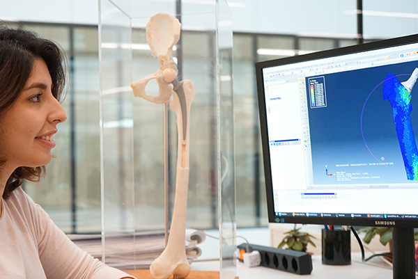 Marzieh Ovesy has developed a finite element method to predict bone implant stability